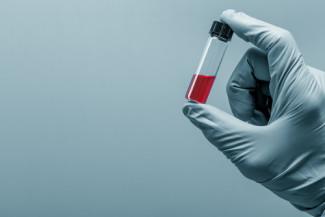 cancer biopsy testing